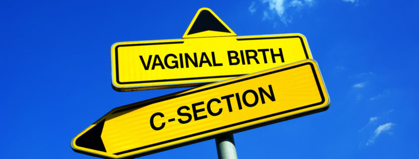 Pregnancy after C-section from MB2B